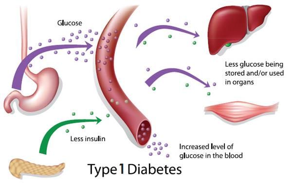 what happens in the body with type 1 diabetes